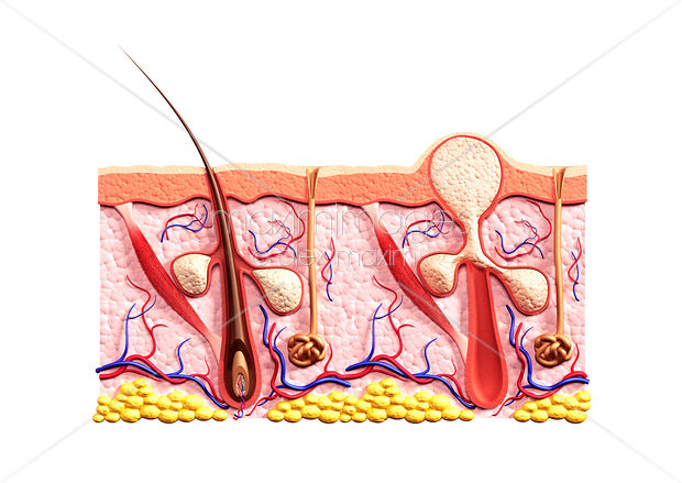 Cross section of skin showing structure of a healthy hair follicle and a whitehead filled with sebum
